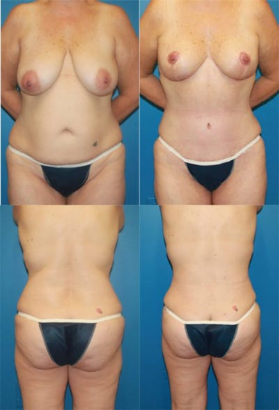 Mommy Makeover Gallery - Patient 2161683 - Image 1