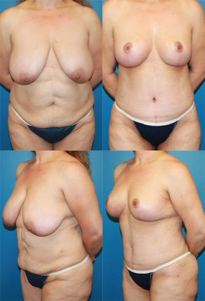 Mommy Makeover Gallery - Patient 2161687 - Image 1