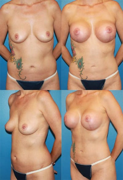 Mommy Makeover Gallery - Patient 2161689 - Image 1