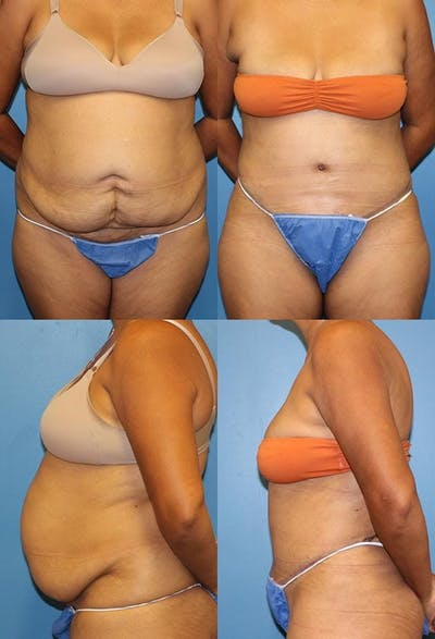 Tummy Tuck Gallery - Patient 2161692 - Image 1