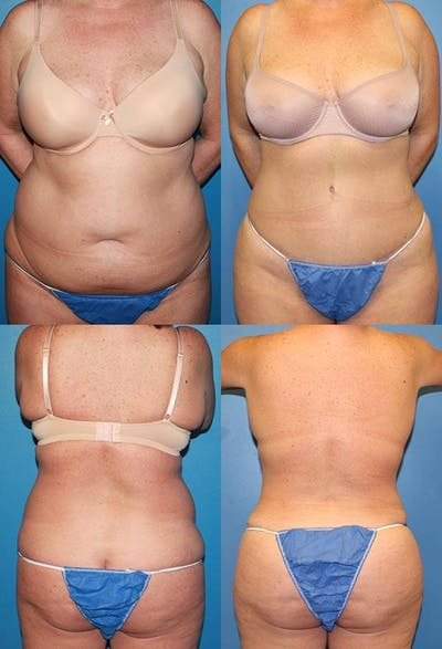 Tummy Tuck Gallery - Patient 2161694 - Image 1