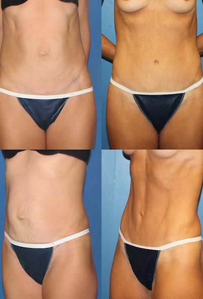 Tummy Tuck Gallery - Patient 2161695 - Image 1