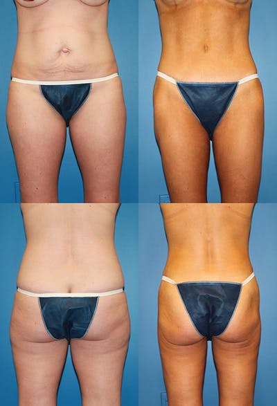 Tummy Tuck Gallery - Patient 2161697 - Image 1