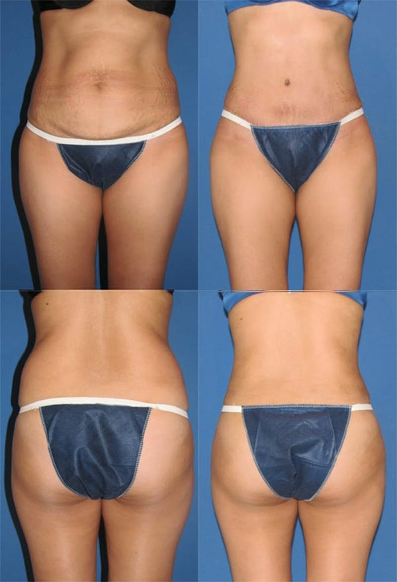 Tummy Tuck Gallery - Patient 2161700 - Image 1