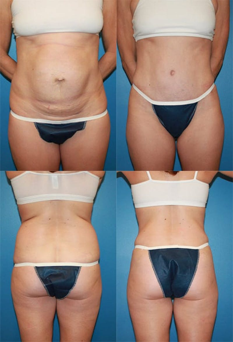 Tummy Tuck Gallery - Patient 2161702 - Image 1