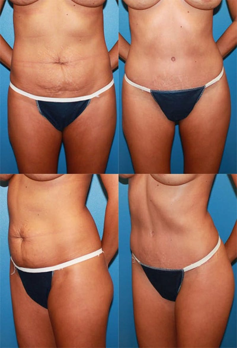 Tummy Tuck Gallery - Patient 2161703 - Image 1