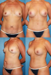 Tummy Tuck Gallery - Patient 2161705 - Image 1