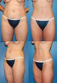 Tummy Tuck Gallery - Patient 2161706 - Image 1