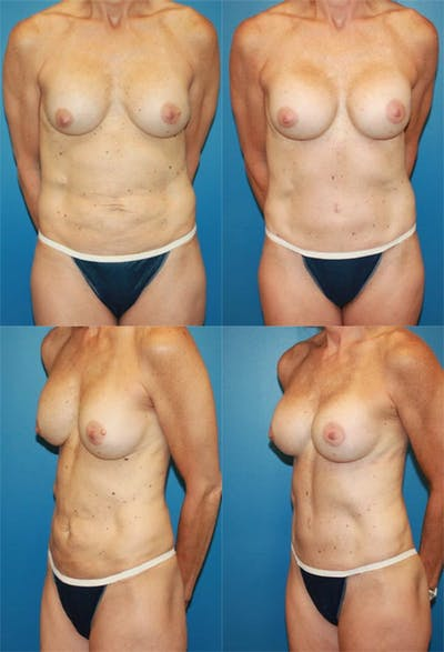 Tummy Tuck Gallery - Patient 2161707 - Image 1