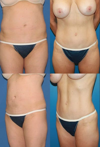 Tummy Tuck Gallery - Patient 2161708 - Image 1
