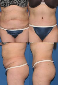 Tummy Tuck Gallery - Patient 2161709 - Image 1
