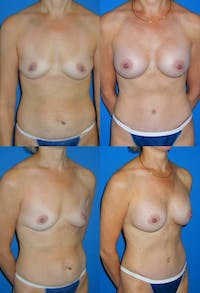 Tummy Tuck Gallery - Patient 2161710 - Image 1