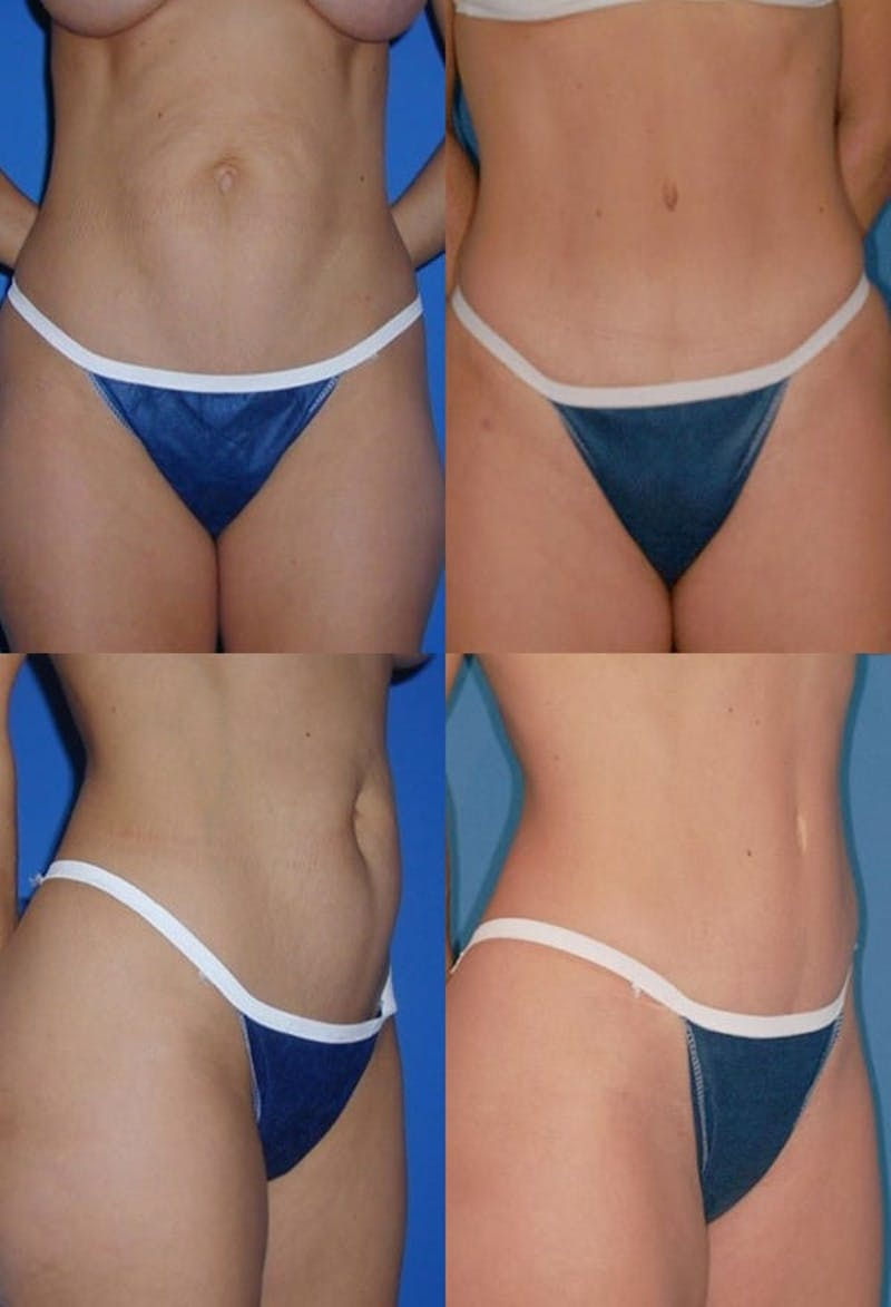 Tummy Tuck Gallery - Patient 2161713 - Image 1
