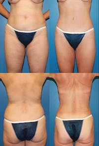 Tummy Tuck Gallery - Patient 2161714 - Image 1