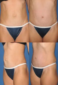 Tummy Tuck Gallery - Patient 2161736 - Image 1