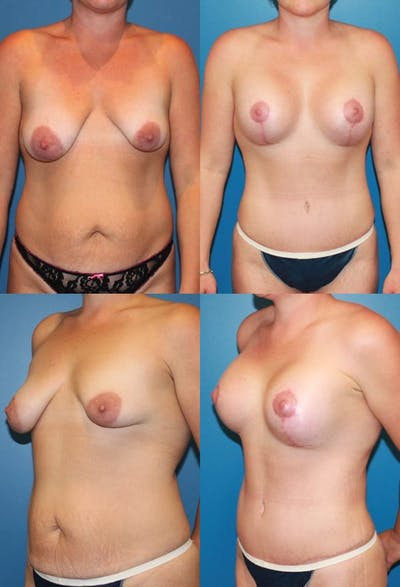 Tummy Tuck Gallery - Patient 2161738 - Image 1