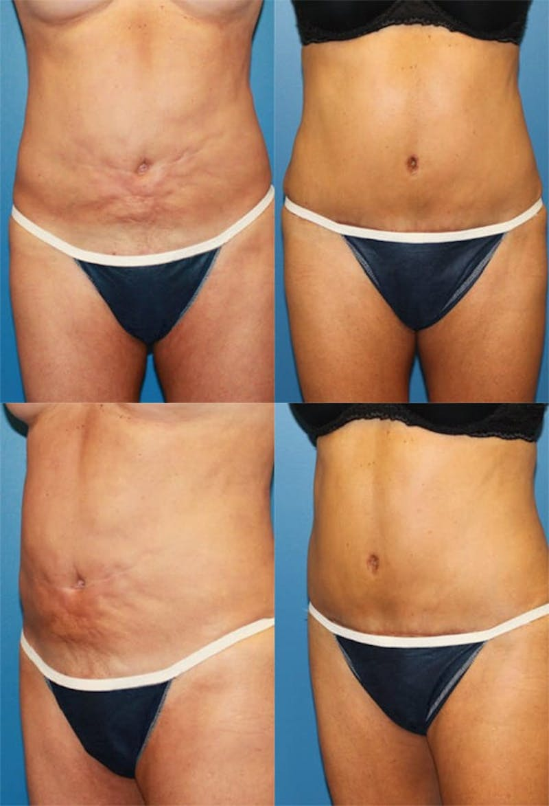 Tummy Tuck Gallery - Patient 2161740 - Image 1
