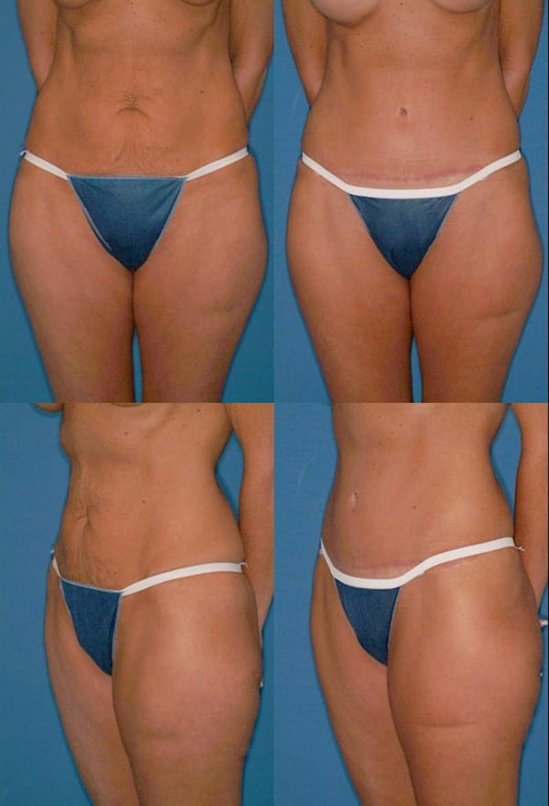 Tummy Tuck Gallery - Patient 2161741 - Image 1