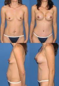 Tummy Tuck Gallery - Patient 2161742 - Image 1