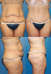 Tummy Tuck Gallery - Patient 2161743 - Image 1
