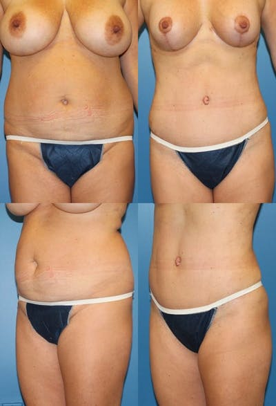Tummy Tuck Gallery - Patient 2161746 - Image 1