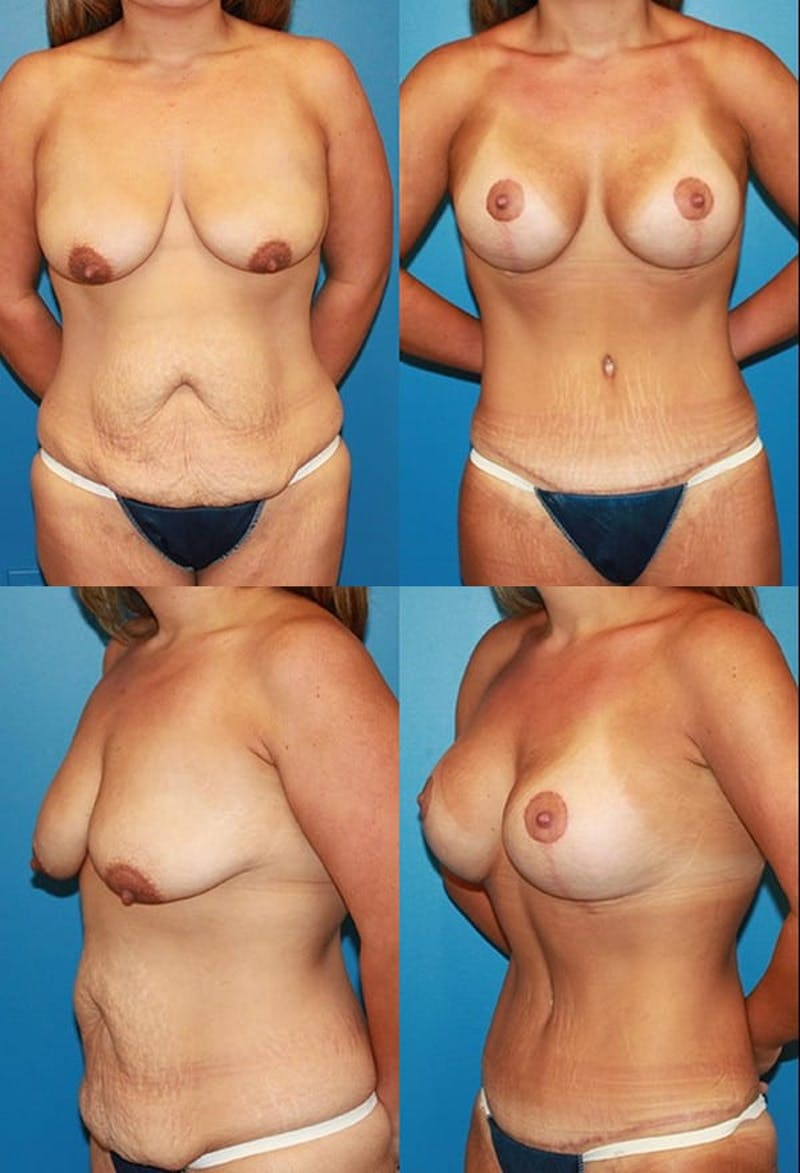 Tummy Tuck Gallery - Patient 2161747 - Image 1