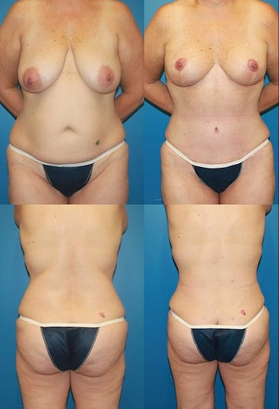 Tummy Tuck Gallery - Patient 2161748 - Image 1