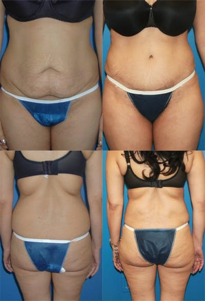 Tummy Tuck Gallery - Patient 2161749 - Image 1