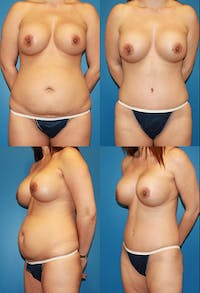 Tummy Tuck Gallery - Patient 2161750 - Image 1