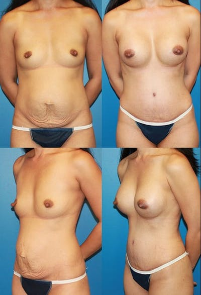 Tummy Tuck Gallery - Patient 2161752 - Image 1