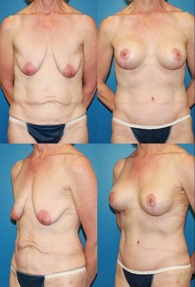 Tummy Tuck Gallery - Patient 2161753 - Image 1