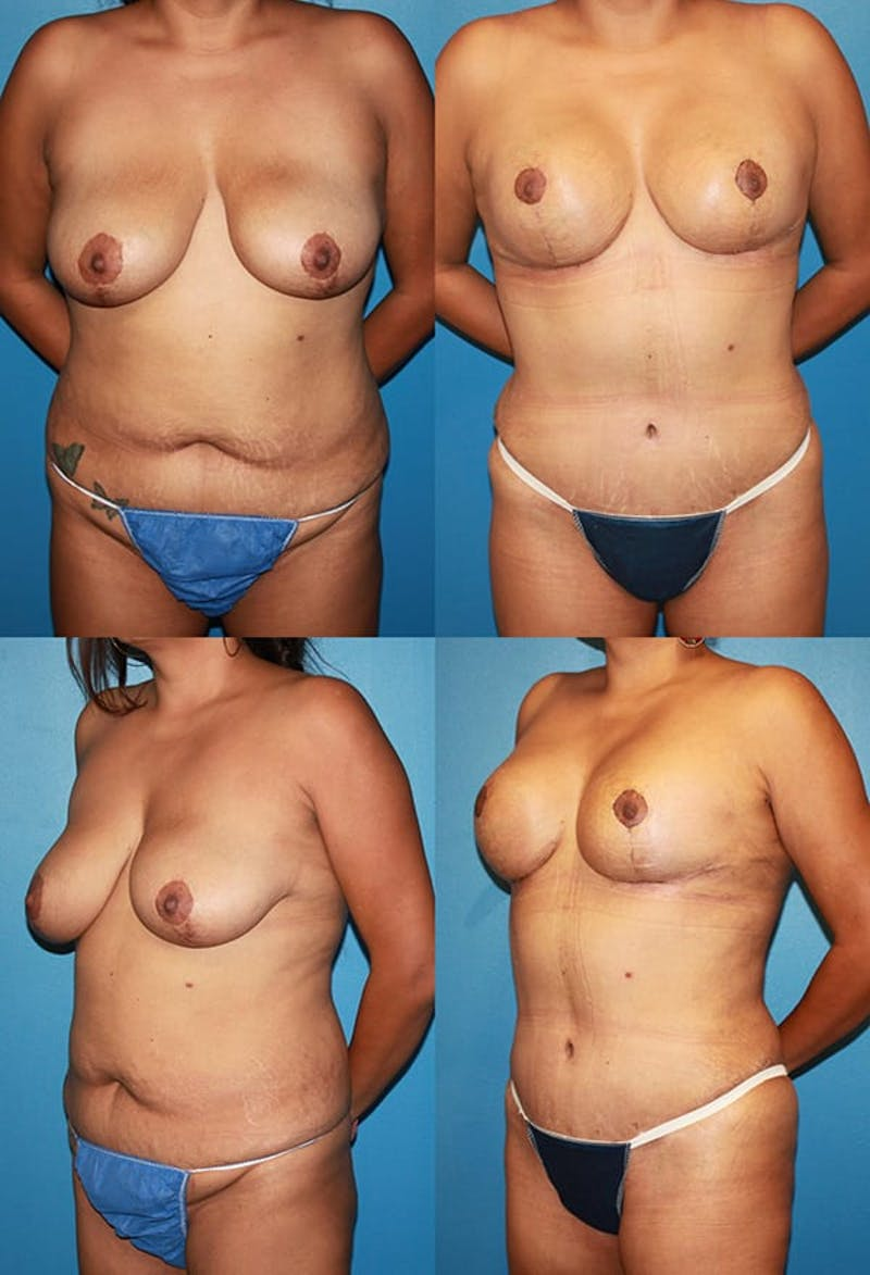 Tummy Tuck Gallery - Patient 2161754 - Image 1