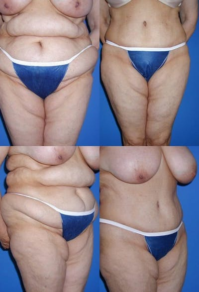 Tummy Tuck Gallery - Patient 2161756 - Image 1