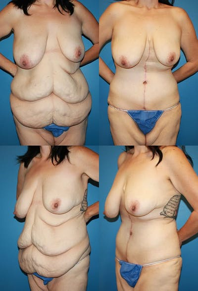 Tummy Tuck Gallery - Patient 2161757 - Image 1