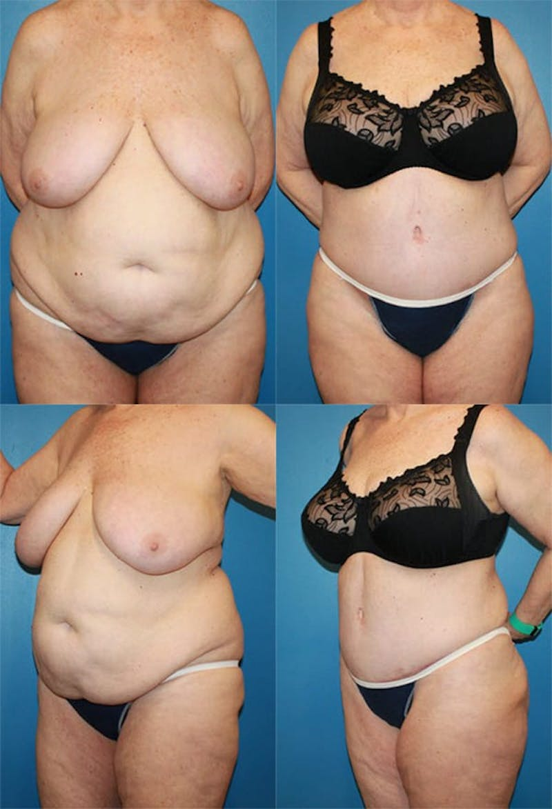 Tummy Tuck Gallery - Patient 2161758 - Image 1