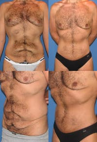Tummy Tuck Gallery - Patient 2161760 - Image 1
