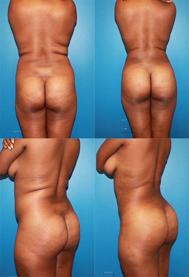 Brazilian Butt Lift Gallery - Patient 2161770 - Image 1