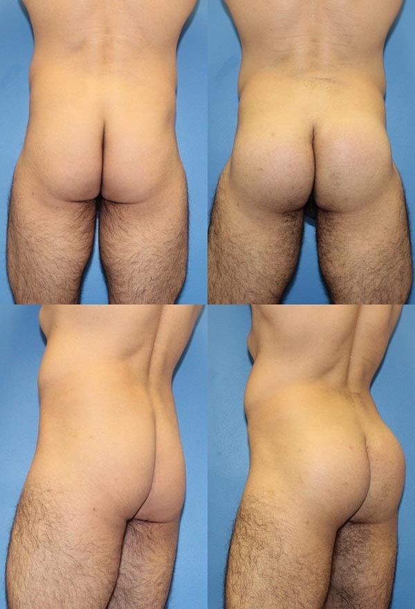 Buttock Enhancement San Diego