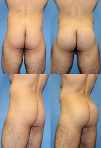 Buttock Enhancement Gallery - Patient 2161776 - Image 1