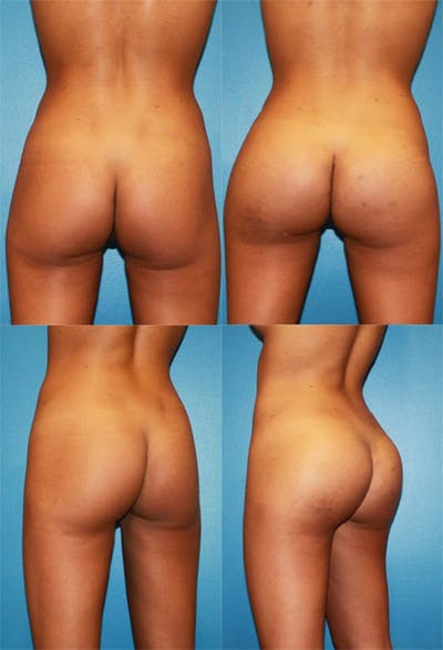 Buttock Enhancement Gallery - Patient 2161779 - Image 1