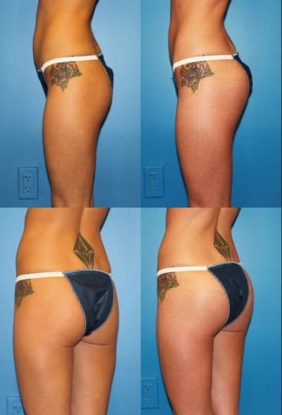 Buttock Augmentation with Implants – Female Gallery - Patient 2394952 - Image 1