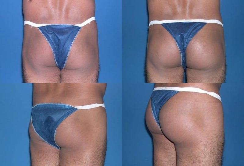 Buttock Enhancement Gallery - Patient 2161782 - Image 1