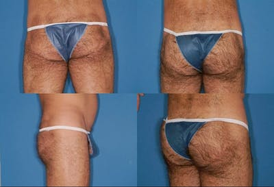 Buttock Enhancement Gallery - Patient 2161783 - Image 1
