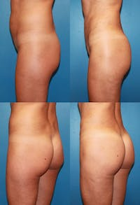 Brazilian Butt Lift (Buttock Augmentation Using Fat Transfer) Gallery - Patient 2395045 - Image 1