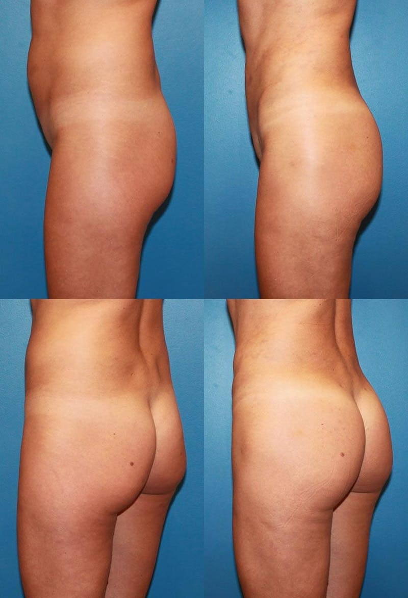 Buttock Enhancement Gallery - Patient 2161785 - Image 1