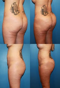 Brazilian Butt Lift (Buttock Augmentation Using Fat Transfer) Gallery - Patient 2395046 - Image 1