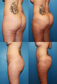 Buttock Enhancement Gallery - Patient 2161787 - Image 1