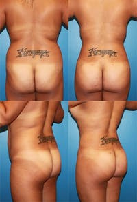 Buttock Enhancement Gallery - Patient 2161788 - Image 1