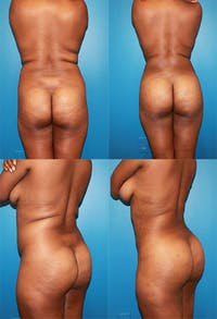 Brazilian Butt Lift (Buttock Augmentation Using Fat Transfer) Gallery - Patient 2395049 - Image 1