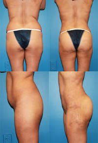 Brazilian Butt Lift (Buttock Augmentation Using Fat Transfer) Gallery - Patient 2395050 - Image 1